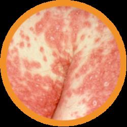 eritrodermica