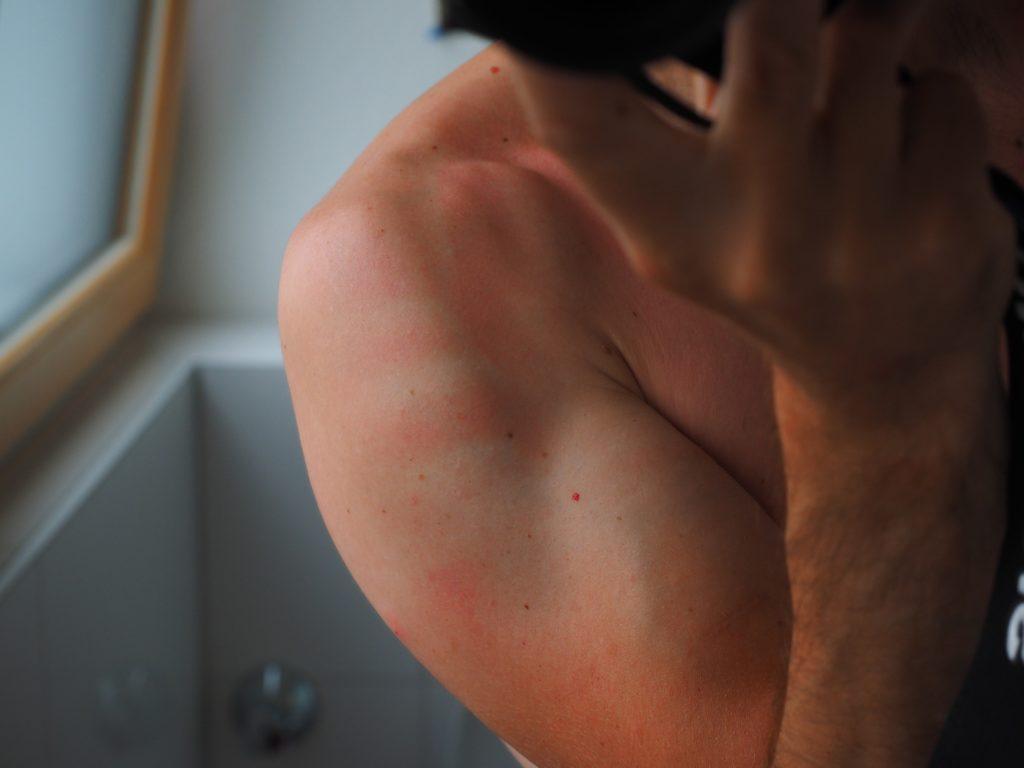 scottatura pelle sul braccio